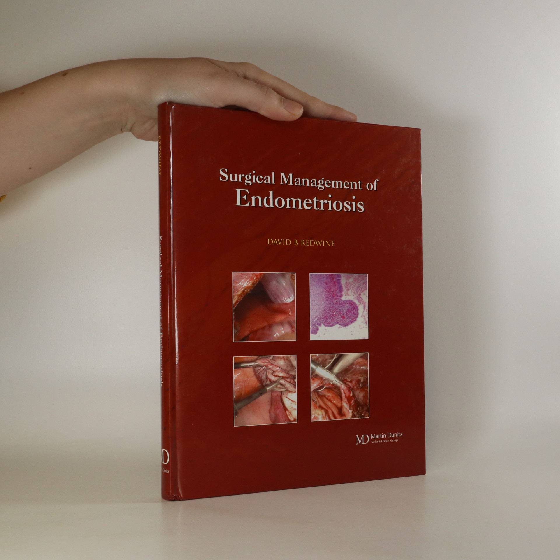 antikvární kniha Surgical Management of Endometriosis, neuveden